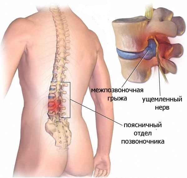 III степень остеохондроза