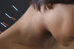Иглотерапия при остеохондрозе шейного отдела позвоночника