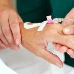 Индукционная химиотерапия