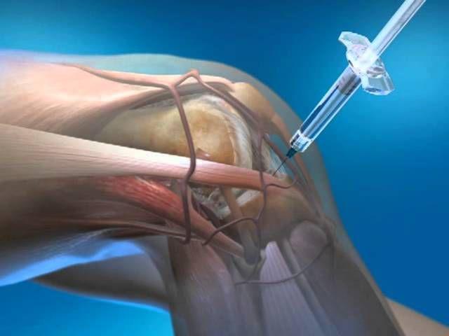Пункция кисты мениска коленного сустава