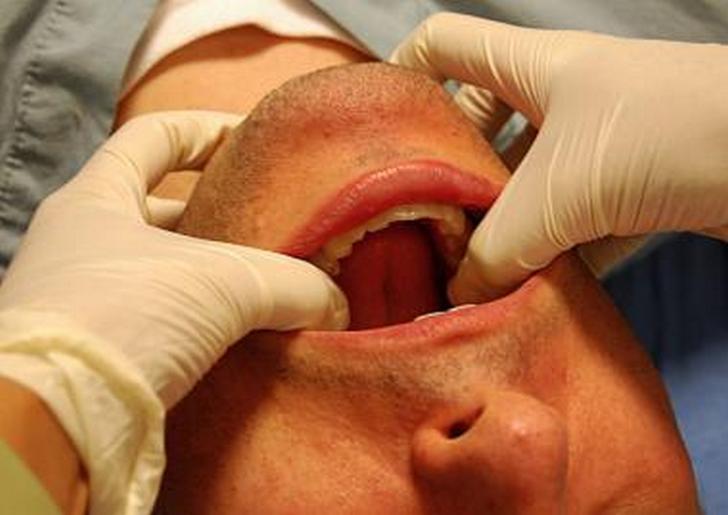 Как лечить артрозы челюстей с использованием лечебной физкультуры