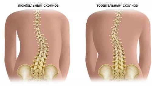Классификация сколиоза грудного отдела позвоночника