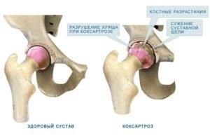 Коксартроз атрофирует группы мышц бедра