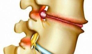 Лечение деформирующего спондилеза