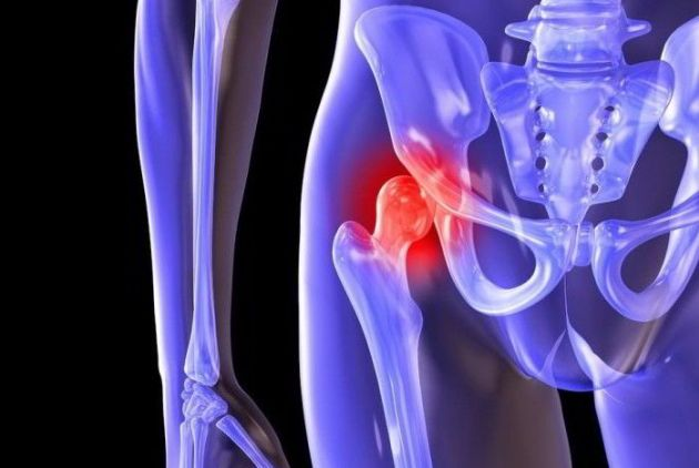 Лечение коксартроза 2 степени тазобедренного сустава
