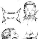 Механотерапия