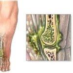 Наличие остеомиелита