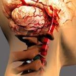 Что такое артроз дугоотросчатых суставов и чем опасно заболевание