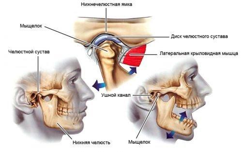 Невозможность открыть поврежденную челюсть на нужную ширину