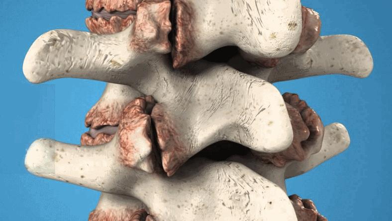 Физиотерапия при остеофитах