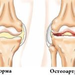 Остеохондроз коленей