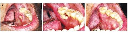 Остеонекроз челюсти