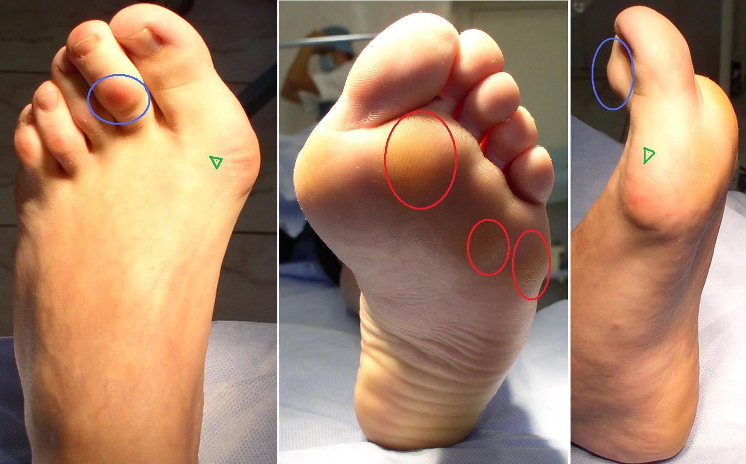 Остеопороз стопы и голеностопного сустава