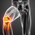 Острая боль при начале движения