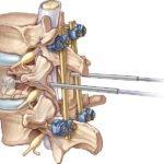 Методы лечения компрессионного перелома позвоночника грудного отдела
