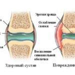Патологии костной ткани и хрящей