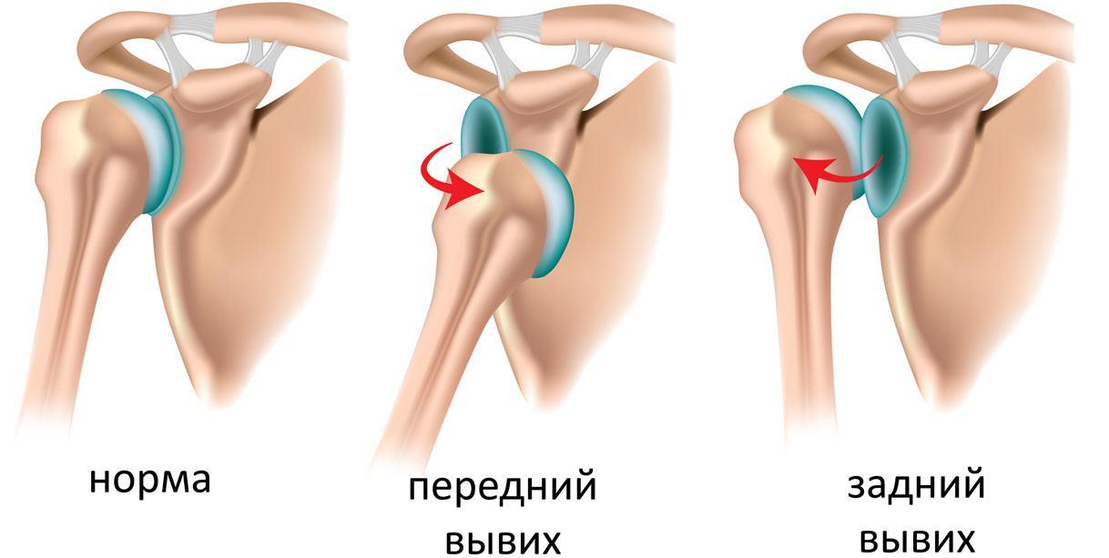 Передний и задний вывих
