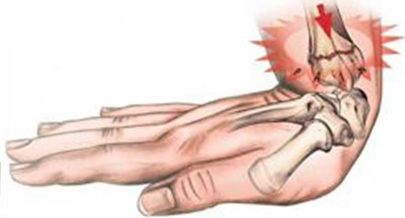 Перелом кисти
