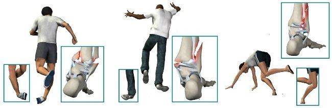 Переломы встречаются крайне часто
