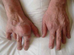 Причины развития болезненности