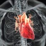 Поражения сердечно-сосудистой системы