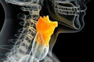 Повреждение голосовых связок