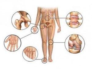 Признаки туберкулеза костей и суставов