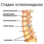 Прогрессирование остеохондроза