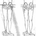 Разница в длине между правой и левой ногой