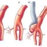 Разрыв важных сосудов и артерий
