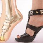 Регулярное ношение неудобной или некачественной обуви
