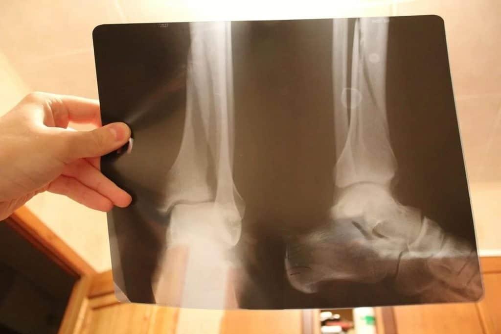 Наступать на поврежденную ногу разрешено только после контрольного рентгена