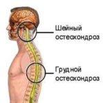 Шейный или грудной остеохондроз