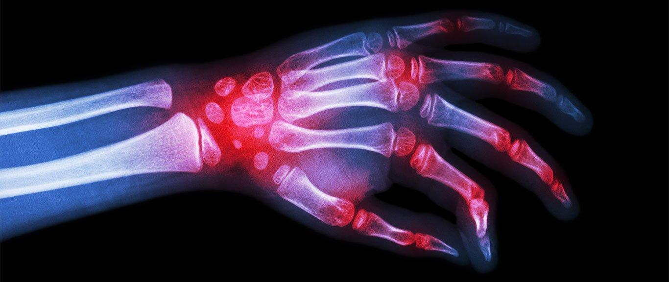 Серопозитивный артрит