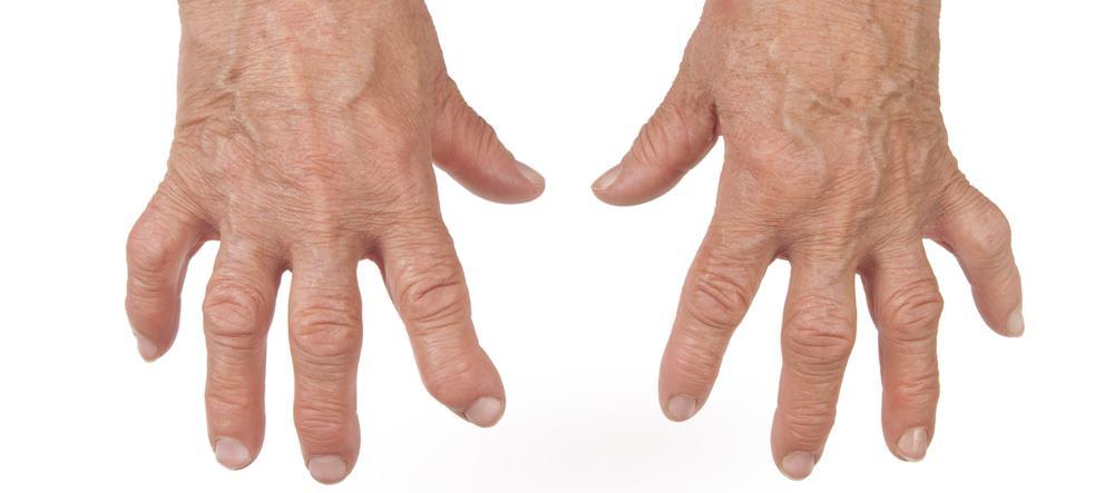 Синдром Фелти