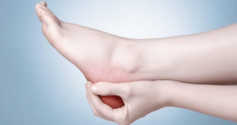 Синдром маршевой стопы