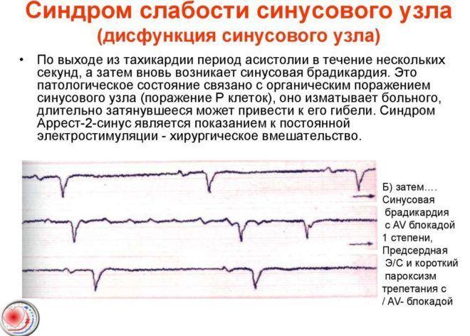 Синдром слабости синусового узла