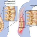 Что делать, если болят кости и как понять причину