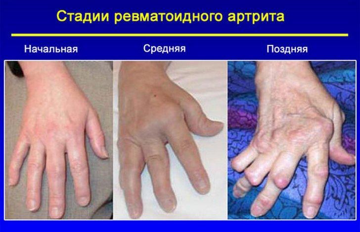 Ревматоидный артрит: стадии заболевания