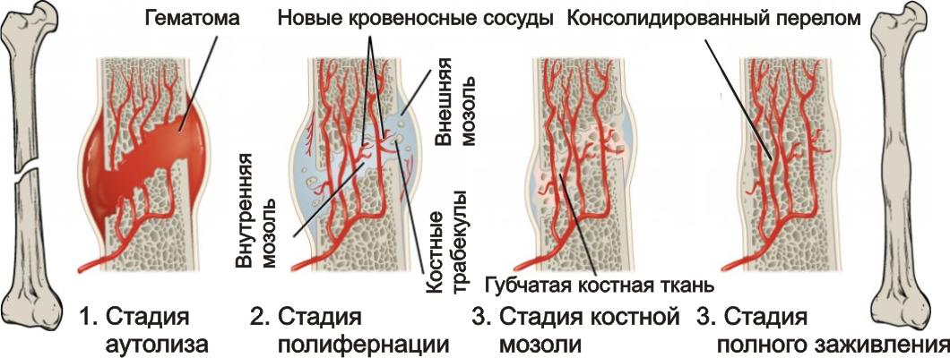 Стадии заживления костей