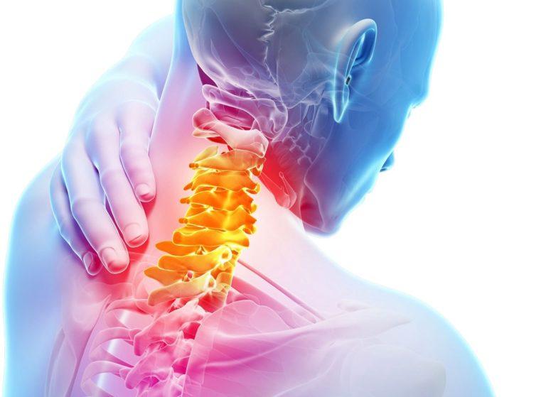 Течение заболевания – шейный остеохондроз