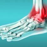 Травмы голеностопного сустава