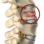 Ушибы и травмы позвоночника