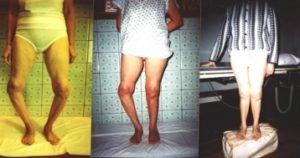 Виды дисплазии коленного сустава