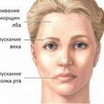 Визуально заметна асимметрия лица