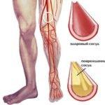 Внутреннее повреждение кровеносных сосудов