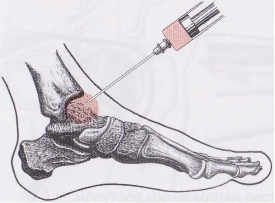Внутрисуставные инъекции