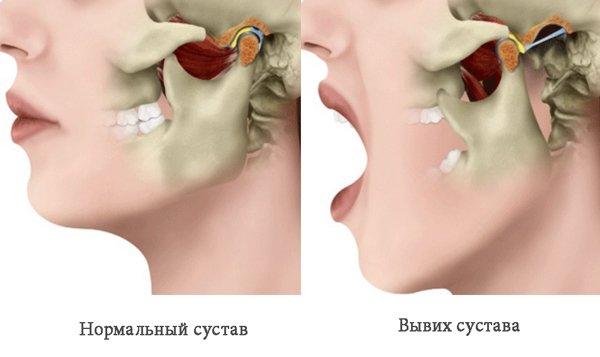 Вывих сустава челюсти
