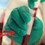 Заболевания крови, при которых она плохо свертывается