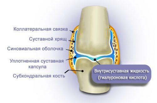 Гиалуроновая кислота для лечения артрита